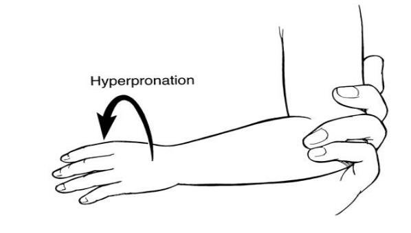 Figure 2. Hyperpronation method. In this method, the examiner supports the child's arm at the elbow and places moderate pressure on the radial head with one finger. The examiner grips the child's distal forearm with the other hand and hyperpronates the forearm. A click may be felt by the finger over the radial head when the subluxation is reduced.